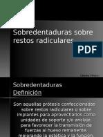 19 -Sobredentaduras Sobre Restos Radiculares (1)