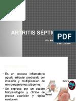 Artritis Septica Maria Hernandez