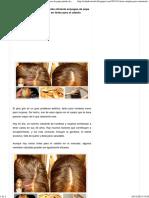 Este simple pero extremadamente eficiente enjuague de papa puede.pdf
