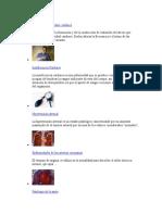 Alteraciones Del Ritmo Cardiaco.docx Flor