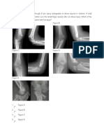 Supracondyler Fracture- Pediatric (12)