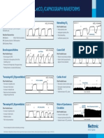 EMS Capnography Waveforms