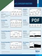 EMS Capnography Waveforms