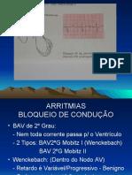 Eletrocardiograma (New) Part 2