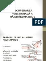 Mana Reumatoidă