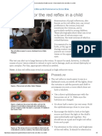Community Eye Health Journal » How to Test for the Red Reflex in a Child 2014