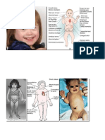 Paeds Flashcards