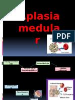 Aplasia de Medula