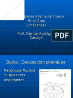 Neuroanatomía Interna de Tronco encefálico