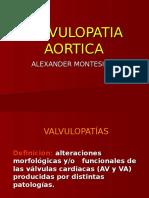 VALVULOPATIA AORTICA