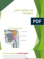 cancerul-faringian.pptx