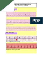 Cardiovascular SYSTEM_Heart Dysrythmia Illustrations