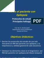RM en Epilepsia