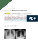 Posible Asma Cardiaco, Caso Procesos II