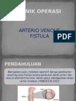 To Av Fistula