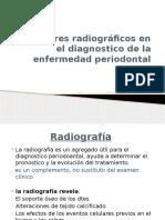 Auxiliares Radiograficos en El Diagnostico de La Enfermedad