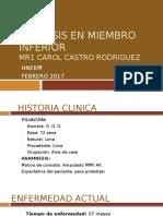 Prótesis en Miembro Inferior [Autoguardado]