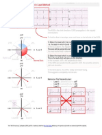 ECG Interpretation - 1 the QRS Axis the Isoelectric Lead Method