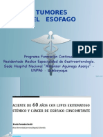 Medicina III - Neoplasia Maligna de Esófago