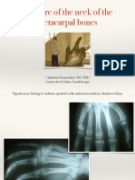 Metacarpal Neck Fractures
