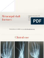 Metacarpal Shaft Fractures