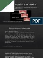 Técnicas Anestésicas en Maxilar