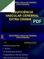 4. Insuficiência Vascular Cerebral Extra Craniana