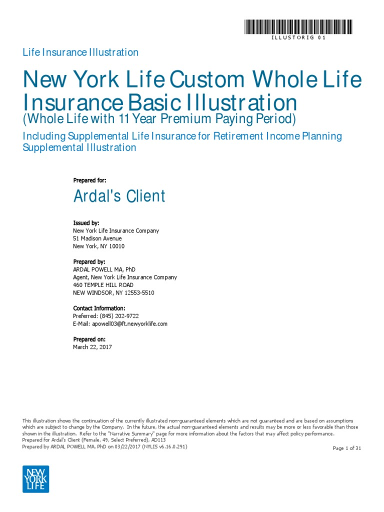Supplementary Life Insurance For Retirement Planning 4 For 1
