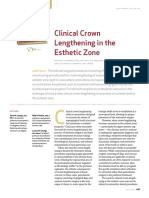 Clinical Crown Lengthening in the Esthetic Zone2028