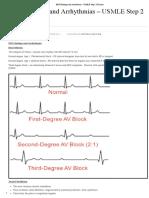EKG Findings and Arrhythmias - USMLE Step 2 CK Exam