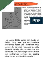 Espina Bifida.