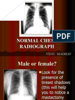 Normal Chest Radiograph ppt