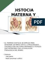 distocia-160716014242