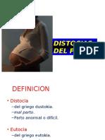 Distocias - obstetricia