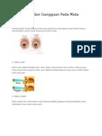10 Penyakit Dan Gangguan Pada Mata