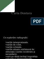 leziuni_carioase