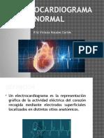 Electrocardiograma Normal