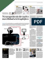 Neuroprótesis Devuelve Mopvilidad a Tetrapléjico