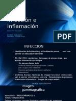 Infección e Inflamación Medicina Nuclear
