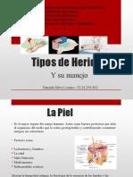 Tipos de Heridas.pptx