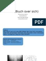BOF (Biuch over sich).pptx