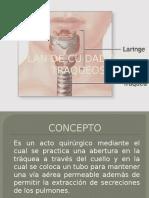 traqueostomia..pptx