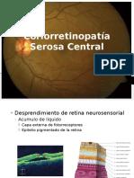 Coriorretinopatía Serosa Central 2