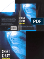 CHEST_X-RAY_MADE_EASY.pdf