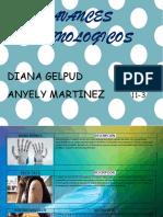 Avances Tecnologicos 11-3