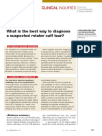 What is the Best Way to Diagnose a Suspected Rotator Cuff Tear?