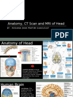 Anatomy, CT Scan and MRI of Head Fix
