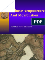 (9) Introduction of Acupuncture