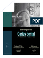 ESTUDIO+RADIOGRÁFICO+DE+LA+CARIES+DENTAL