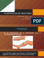 Clasificacion de Fracturass